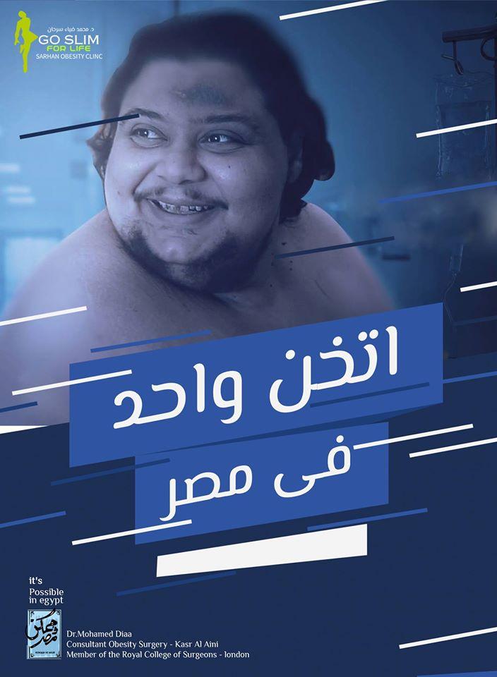 أصعب عملية سمنة في مصر